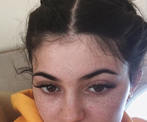kylie jenner, kylie, and freckles image