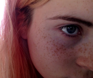 girl, freckles, and tumblr image