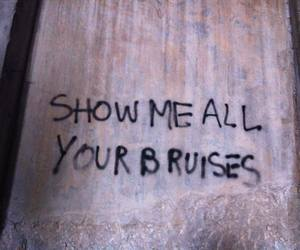 wall, bruises, and graffiti image