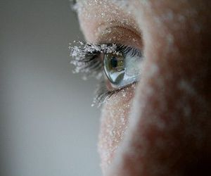 eye frost image