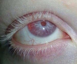 eye, pale, and albino image