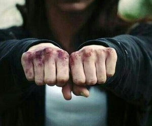 fight, bruise, and hands image