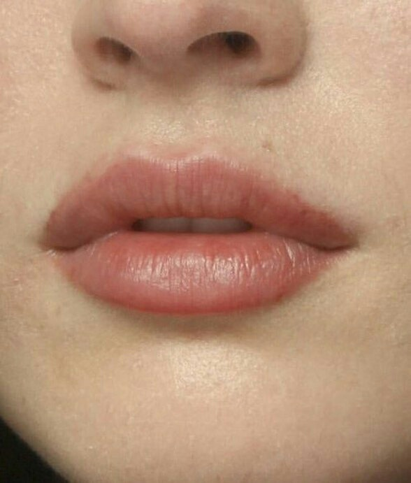 lips and skin image