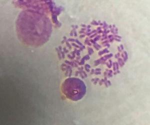 histology, chromosomes, and giemsa image