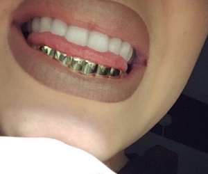gold, teeth, and beauty image