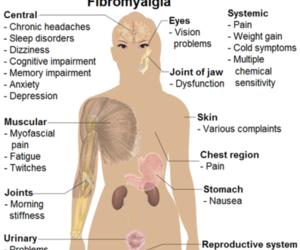 fibromyalgia image
