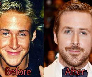 plastic surgery, ryan gosling, and nose job image