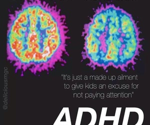 brain and adhd image
