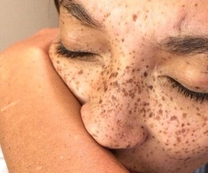 freckles, aesthetic, and beauty image