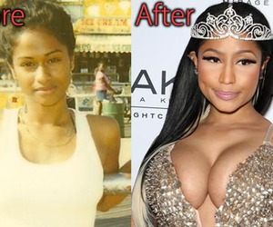 before after, implants, and plastic surgery image