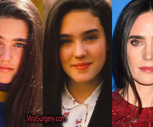beauty, botox, and jennifer connelly image