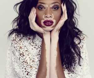 model, winnie harlow, and beauty image