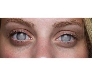 eyes, light blue eyes, and blind eyes image