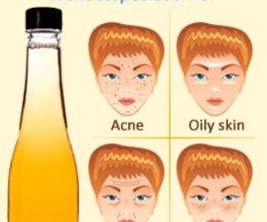 acne, face, and skincare image