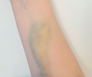 aesthetic, arm, and bruise image