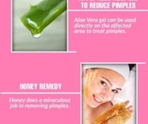 acne, beauty, and hacks image