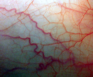 veins, blood, and pale image