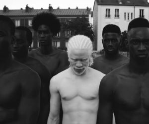 black, white, and albino image