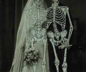 bones and skull image