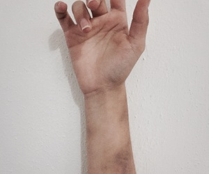 bruises, wall, and hand image