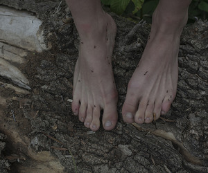 feet, skin, and trunk image