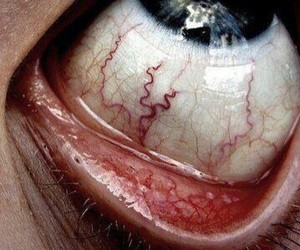 eye, eyes, and veins image