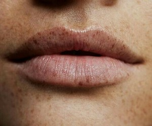 lips, freckles, and beauty image