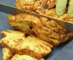 brain, doctor, and medicine image