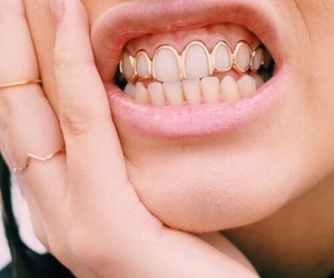 gold and teeth image