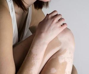 body, skin, and vitiligo image