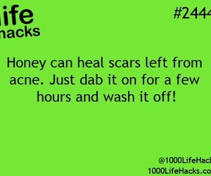 acne, hacks, and life image