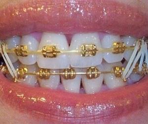 braces image