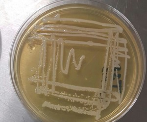 bacteria, lab, and microbiology image