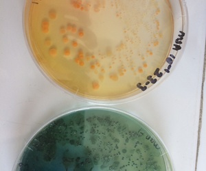 bacteria, microbiology, and mantı image