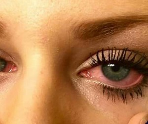 eyes, red, and weed image
