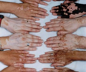 different, vitiligo, and hands image