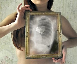 Dream, dreamer, and x ray image