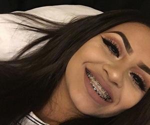 girl, makeup, and braces image