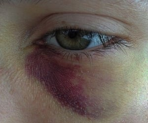 eye, bruise, and pale image