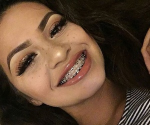 beauty, braces, and eyebrows image