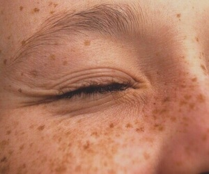 freckles, aesthetic, and tumblr image