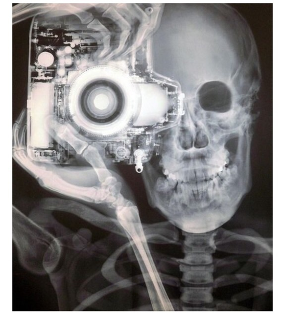 b&w, different, and x-rays image