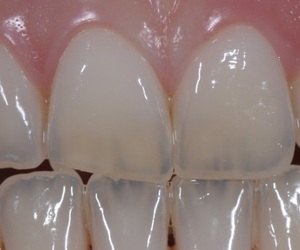 pale and teeth image
