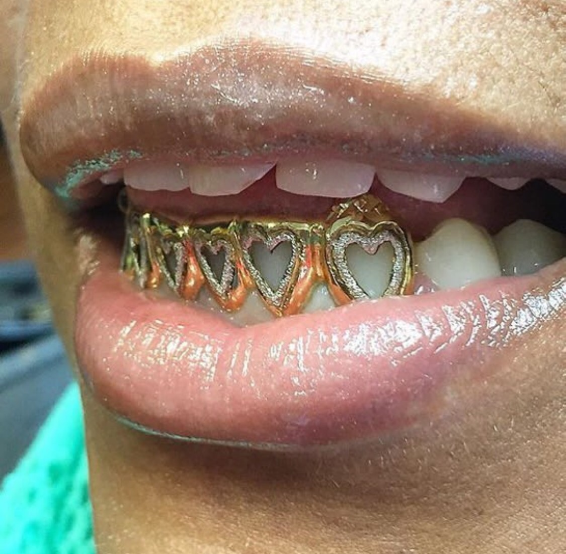 icey and grillz image
