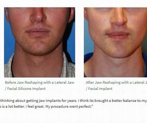 facial plastic surgeon, philip young md, and dr. philip young image