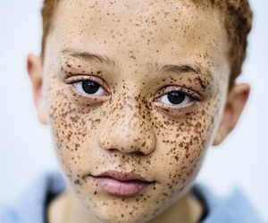 freckles and boy image