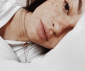freckles and rosiecheekss image