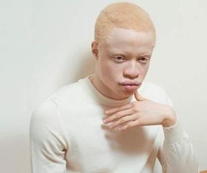 aesthetic, albino, and black image