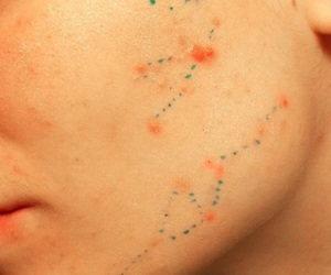 acne, art, and PIMPLES image