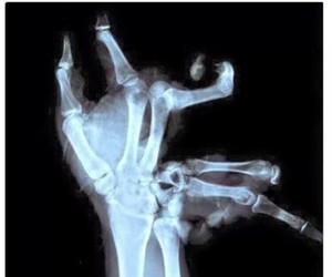 hand, broken, and xray image